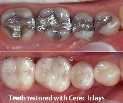 Cerec before and after