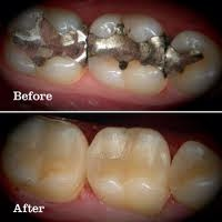 Cerec Fillings