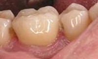 Cerec fitted crown
