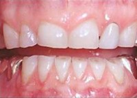 Dental incisal attrition