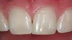 Repaired Incisor