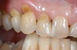 Tooth abrasion